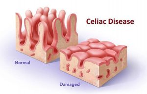 celiac disease pathology