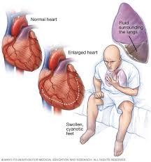 heart failure can mimic asthma