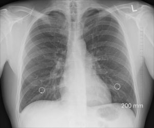 Chest radiograph is normal in allergic asthma