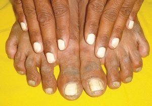 nail changes in hypoalbuminemia and systemic diseases