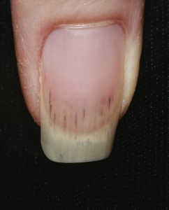 nail changes in vasculitis and heart diseases