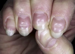 nail changes in malnutrition and systemic diseases