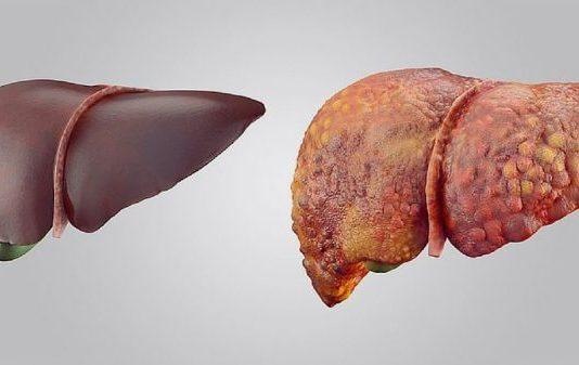 lfts liver function tests