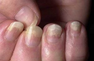 nail changes in psoriasis and systemic diseases
