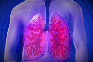 NSAIDs affecting the lungs