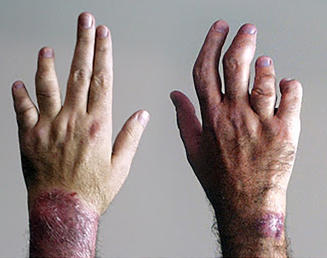 skin rash diagnosis psoriatic arthritis