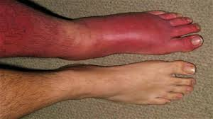 skin rash cellulitis