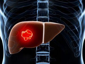 fatty liver and liver cancer