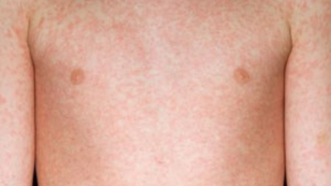 skin rash diagnosis measles