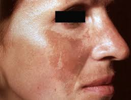 skin rash diagnosis melasma