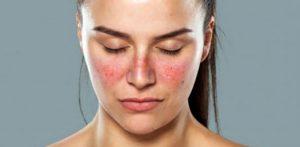 skin rash gangrene