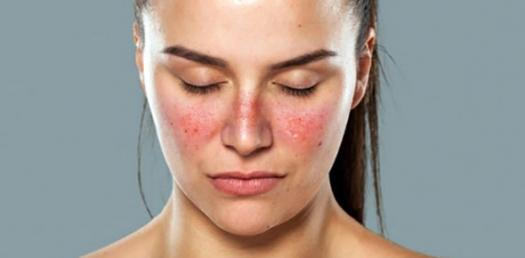 skin rash diagnosis SLE