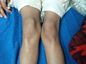 bilateral lower limbs weakness