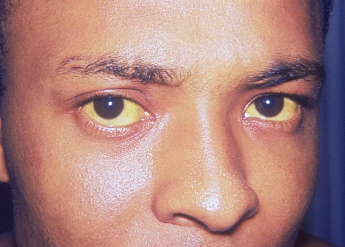 jaundice caused by hepatitis A