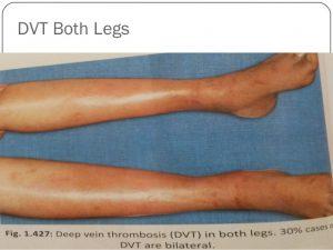 bilateral lower limbs dvt