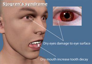 Renal Tubular Acidosis