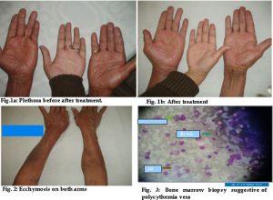 gangrene in blood disorders