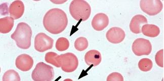 hereditary spherocytosis