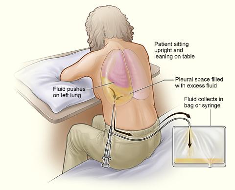 pleural effusion drainage