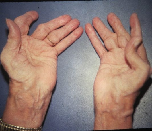 rheumatoid arthritis treatment guidelines