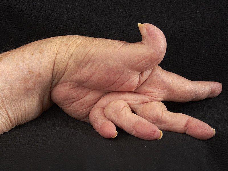 rheumatoid arthritis treatment guidelines