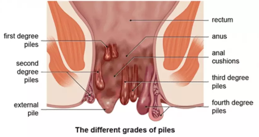 how to prevent and treat hemorrhoids