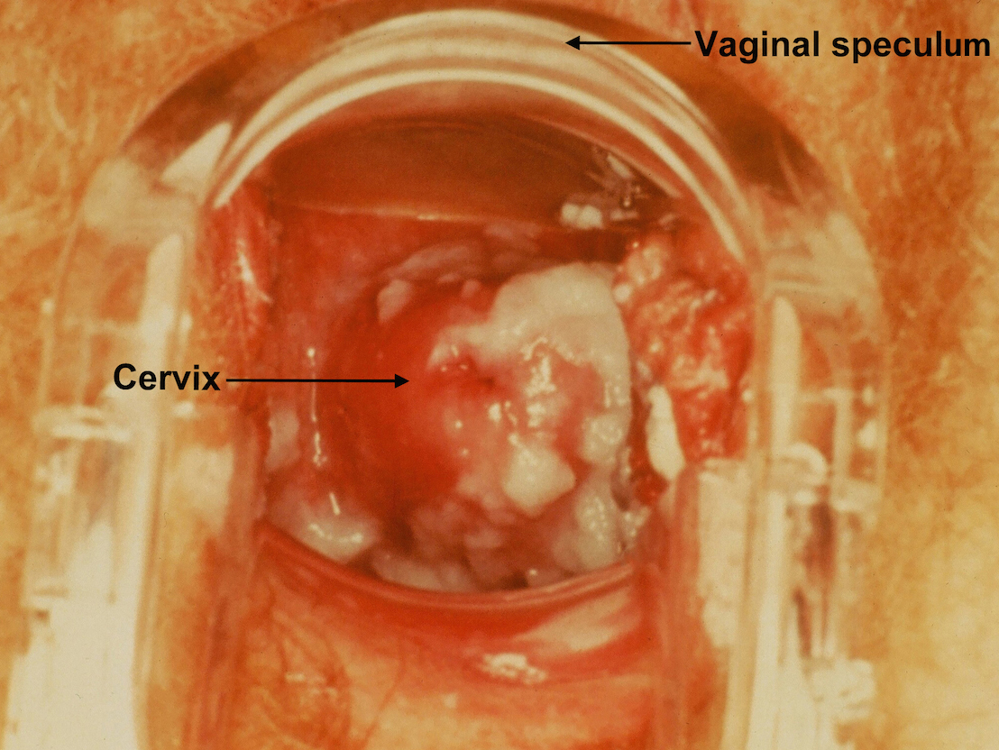 Vaginal yeast infection symptoms, causes, treatment, prevention