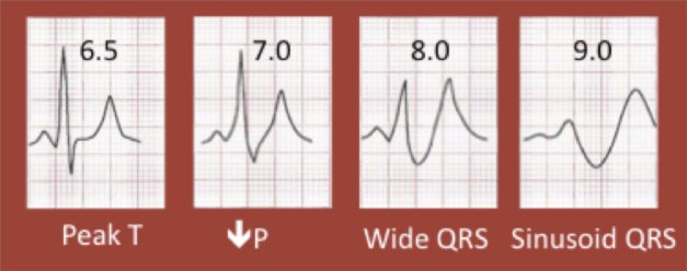 wide QRS in hyperkalemia