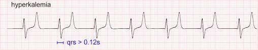 Tall T waves in hyperkalemia