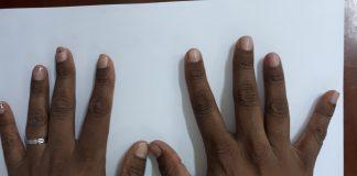 hemochromatosis symptoms hyperpigmentation