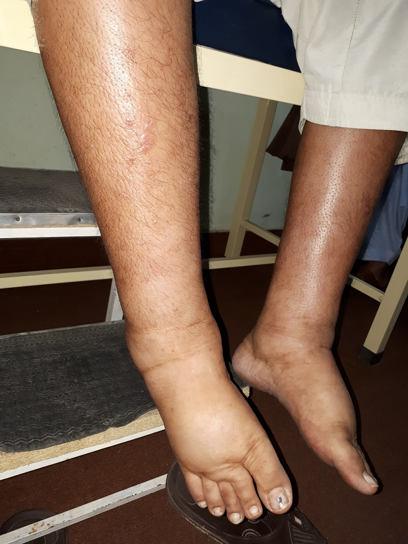 nephrotic syndrome with bilateral edema