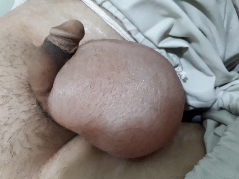 nephrotic syndrome with testicular swelling