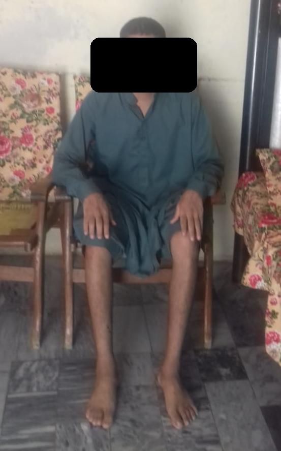 post treatment picture nephrotic syndrome