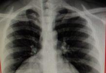 morgagni hernia bouts of cough